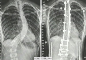 SCOLIOSIS AWARENESS MONTH | MY STORY
